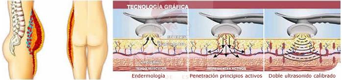 Endermología, reducción, clínica nefertiti, Oferplan