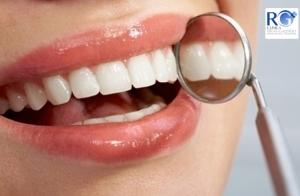 Limpieza dental + Revisión con diagnóstico médico